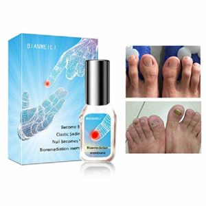 Luckine Arrêt du champignon, Solution d'ongles anti fongique Réparation des ongles Désinfection Liquide Bactériostatique Nail Repair Solution Fungus Nail and Toenail Fungus Treatment