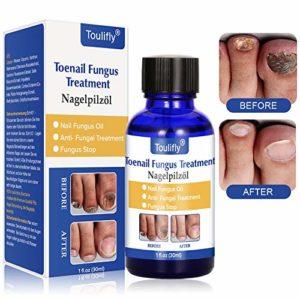 mycose des ongles,Traitement ongles,Anti Traitement Antifongique,antifongique naturelle Solution,efficace contre la mycose d'ongle, favorise la repousse d'ongles sains