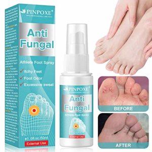 Athletes Foot Spray,Traitements des odeurs de pieds, Traitement Antifongique,Traitement pied, traite efficacement le pied du pied, guerit et previent les infections fongique